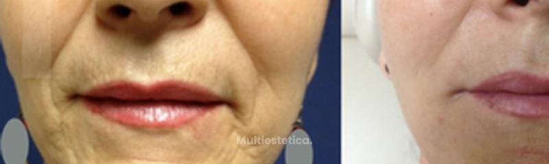 Rejuvenecimiento facial sin cirugía