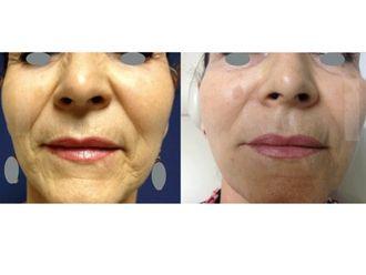 Tratamientos faciales-497987