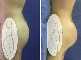 Implantes de glúteo y transferencia