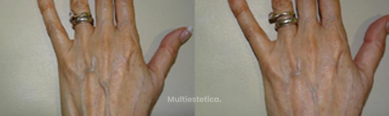 Relleno de manos