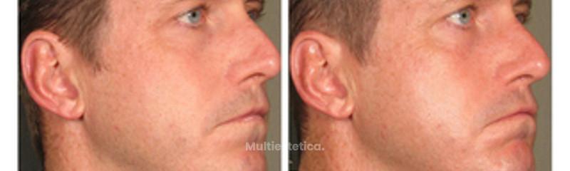 Lifting Facial No Quirúrgico.
