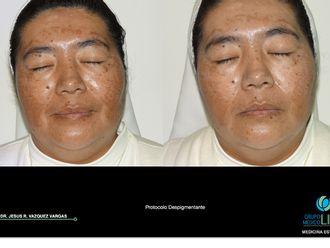 Tratamientos faciales-561075