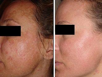 Rejuvenecimiento facial-605395