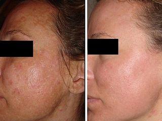 Antes y despues de rejuvenecimiento facial