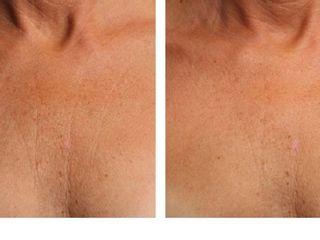 Antes y despues de ultherapy