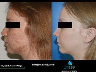 acne activo