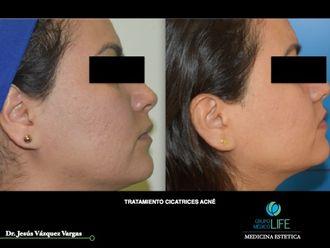 Cirugía para cicatrices - 626547