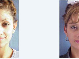 Rejuvenecimiento facial-207960