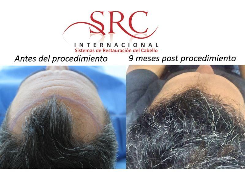 SRC internacional León