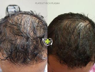 Plasma Rico en Plaquetas-640799