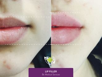 Aumento de labios-641396