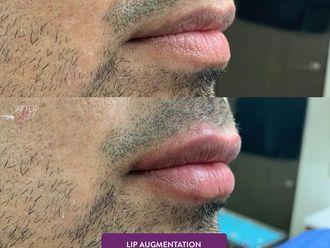 Aumento de labios-641397