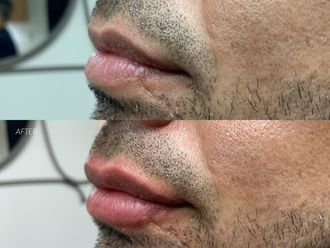 Aumento de labios-641398