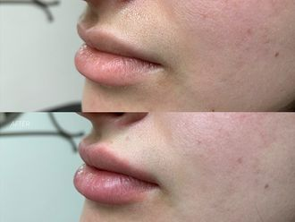 Aumento de labios-641399