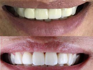 coronas-dentales-implantes-tijuana-bemedicalservices
