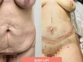 body-lift-tijuana-bemedicalservices