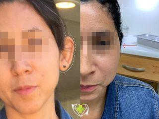 otoplastia-cirugia-orejas-tijuana-bemedicalservices