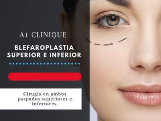 Blefaroplastia - 647548