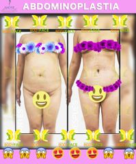 Perfect BodyFace - Abdominoplastia