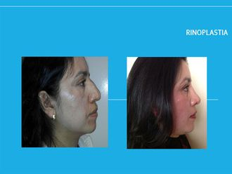 Rinoplastia-449226