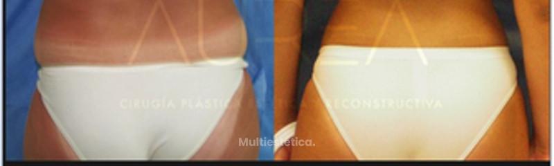 Liposucción / Lipoescultura