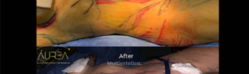 Abdominoplastia High Definition Vaser