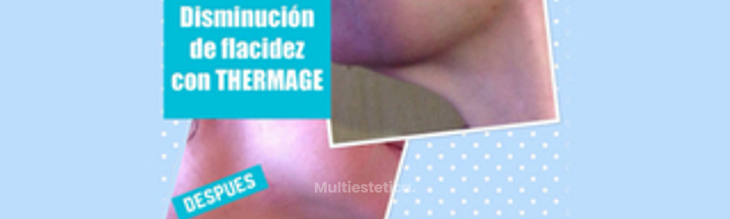 Flacidez con Thermage