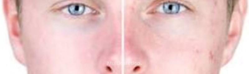 Cicatrices y acné