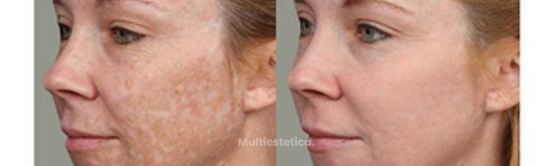 Antes y despues de crema despigmentante Mesoestetic Cosmelan