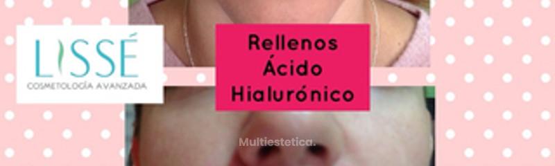 Lisse Cosmetología Avanzada