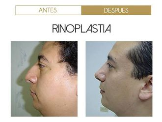 Rinoplastia-570822