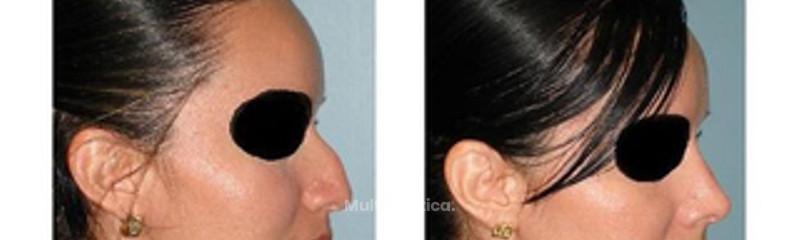 Giba Nasal Prominente