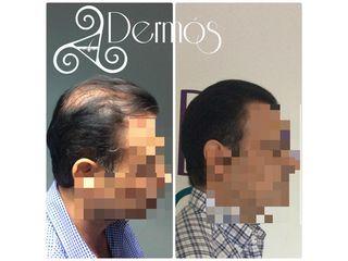 AAPE: Tratamiento de celulas madre para crecimiento de cabello. Antes y despues de 3 sesiones