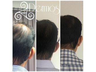 Alopecia-634896