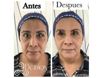 Rejuvenecimiento facial-635454