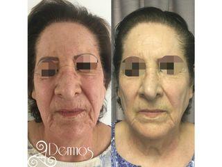 TRATAMIENTO : AAPEcelulas madre en rostro antes y despues de la segunda sesión