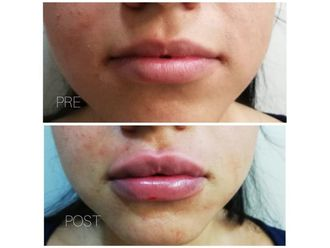 Aumento de labios-636153