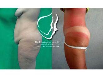 Abdominoplastia - 638090