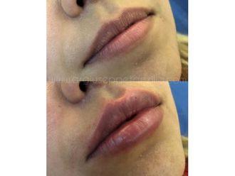 Aumento de labios - 641978