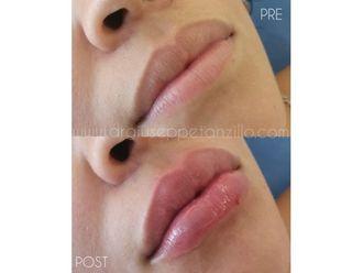 Aumento de labios - 642090