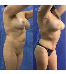 Liposucción - Dr. Giuseppe Tanzillo Greco