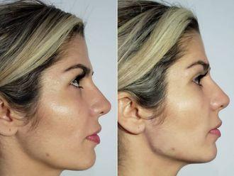 Tratamientos faciales-633845
