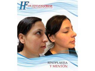 Rinoplastia y mentón