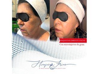 Rejuvenecimiento facial-639567