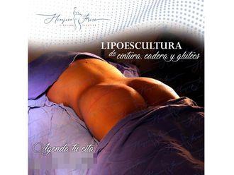 Lipoescultura-640401