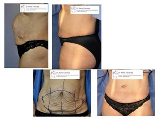 LIPECTOMIA O ABDOMINOPLASTIA