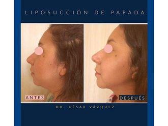 Liposucción-645338