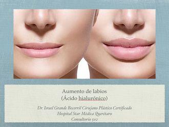 Aumento de labios-505986