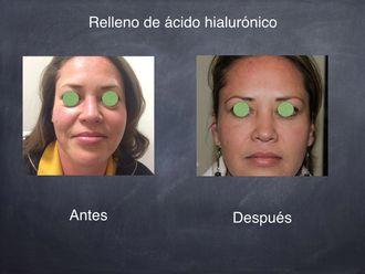 Ácido hialurónico-511404
