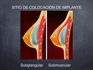 Sitios de colocación de implantes